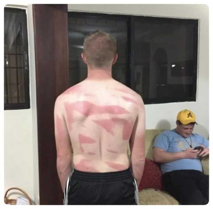 Gente que se ha quemado tomando el sol. Imágenes divertidas. 3