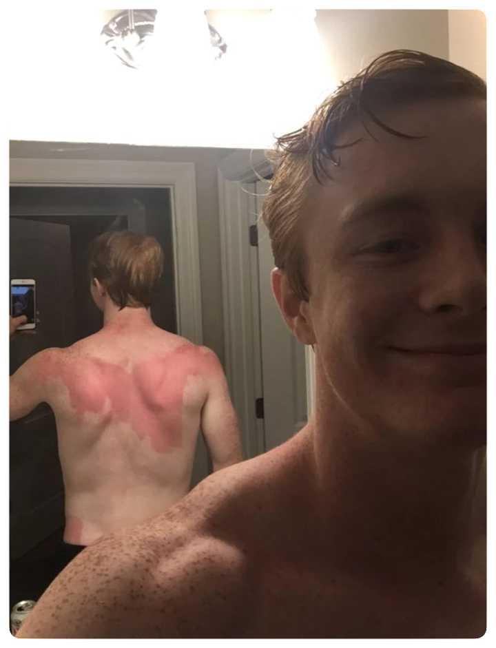 Gente que se ha quemado tomando el sol. Imágenes divertidas. 4