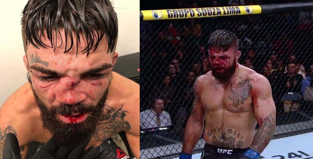 El vídeo de Mike Perry con la nariz destrozada tras el combate con Vicente Luque. 3