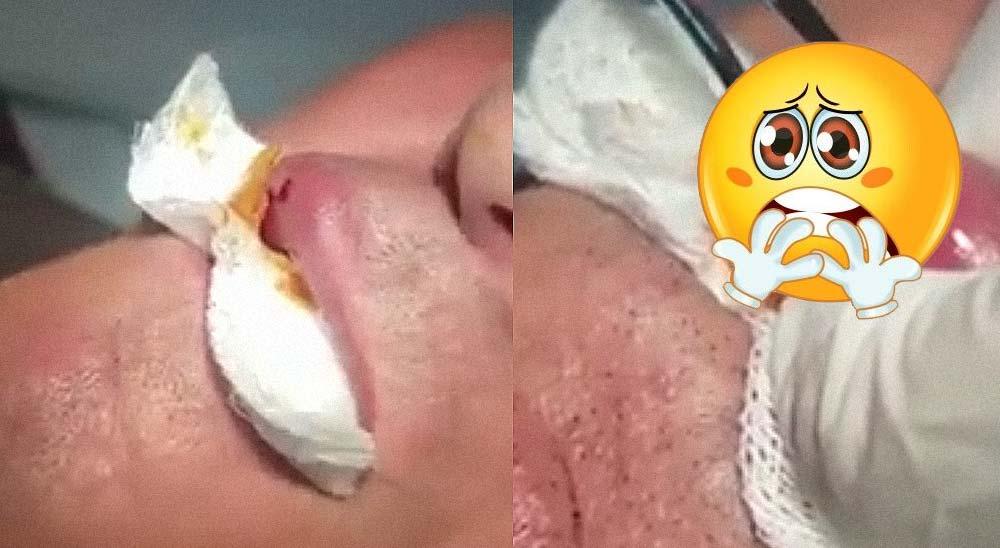Sacan un gusano del labio de este hombre [Vídeo] 2