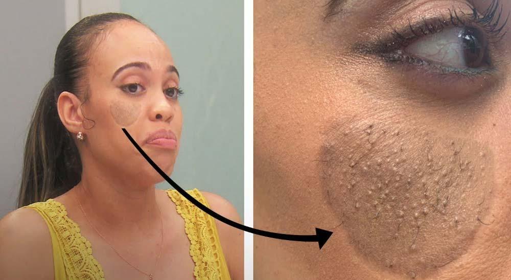 Le sale vello púbico en la cara después de un injerto de piel 4