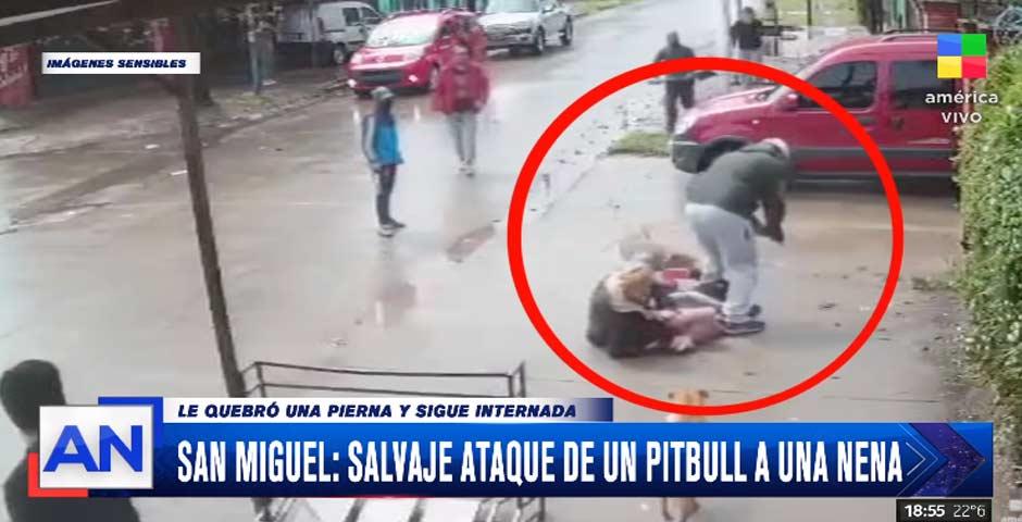 Salvaje ataque de un pitbull a una niña 4